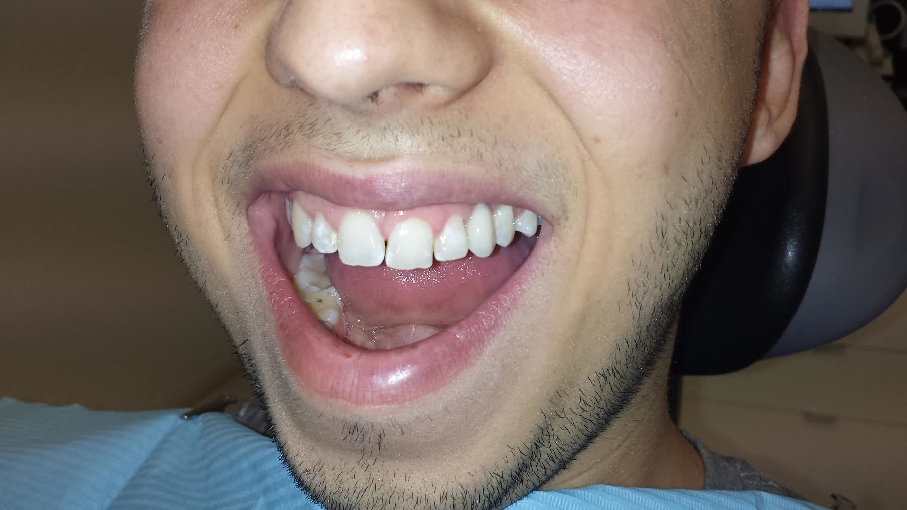 Implant dentaire : pourquoi il peut s'avérer utile ?